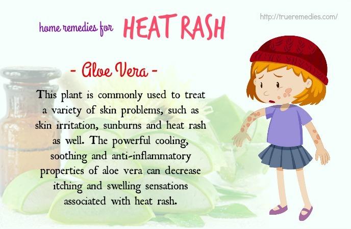 home remedies for heat rash