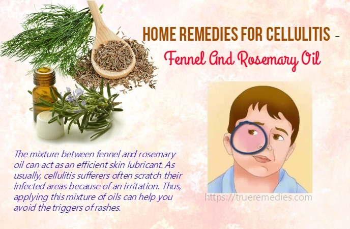 home remedies for cellulitis - fennel and rosemary oil