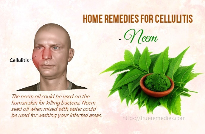 home remedies for cellulitis - neem