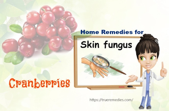 home remedies for skin fungus