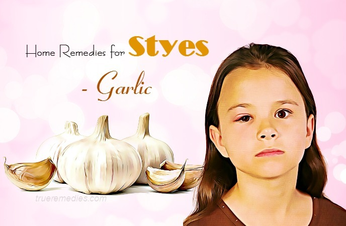 home remedies for styes - garlic
