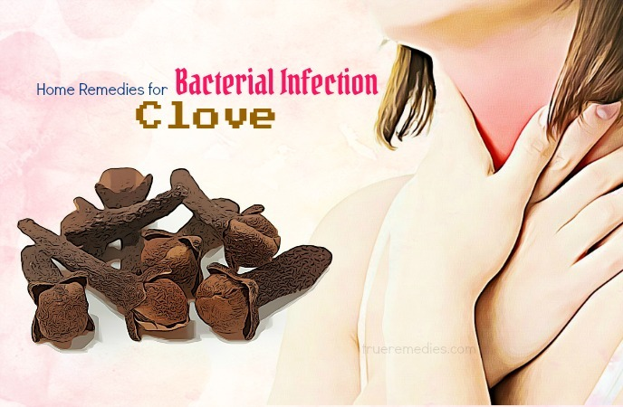 home remedies for bacterial infection - clove