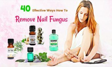 how to remove nail fungus