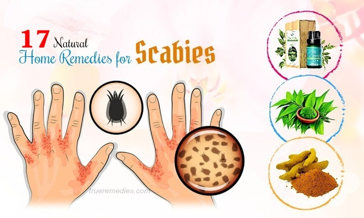 17 Home Remedies For Scabies In Infants & Young Adults
