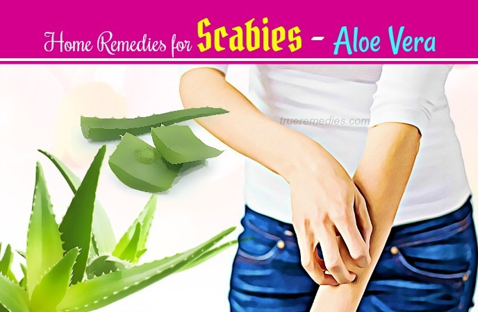 home remedies for scabies - aloe vera
