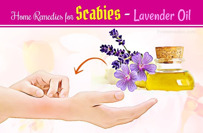 home remedies for scabies - lavender oil