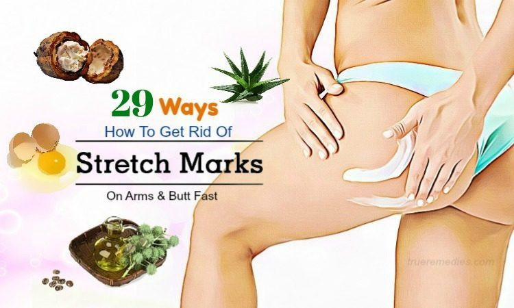 Actual Size Stretch Marks Cream