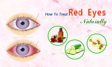 how to treat red eyes