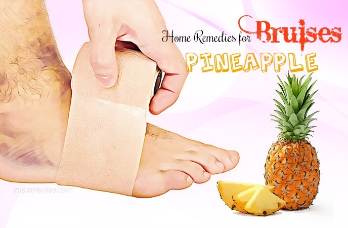 home remedies for bruises - pineapple