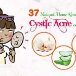 home remedies for cystic acne