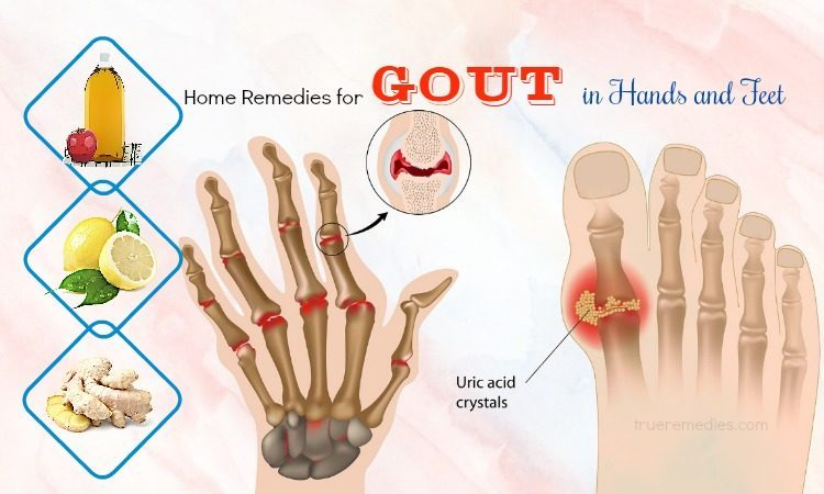 37 Home Remedies For Gout In Hands And Feet