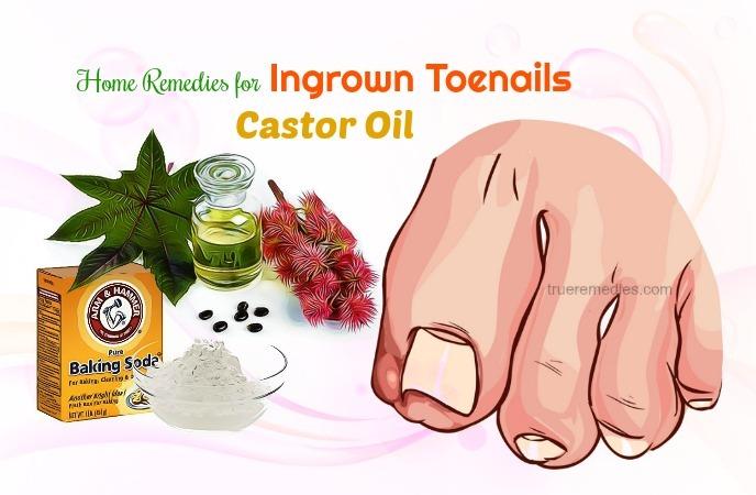 home remedies for ingrown toenails - castor oil