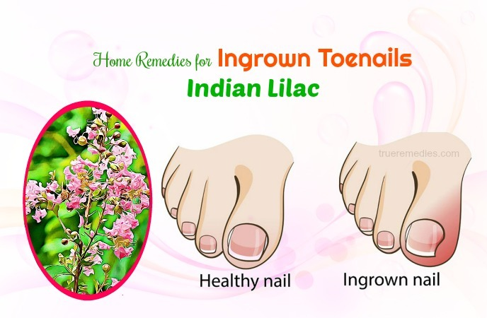 home remedies for ingrown toenails - indian lilac