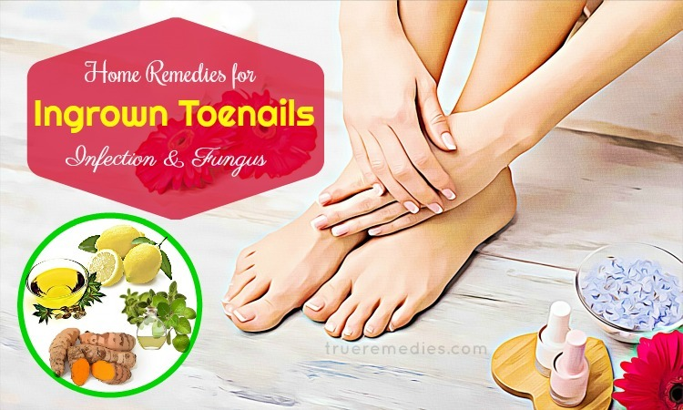 14 Home Remedies For Ingrown Toenails Infection & Fungus