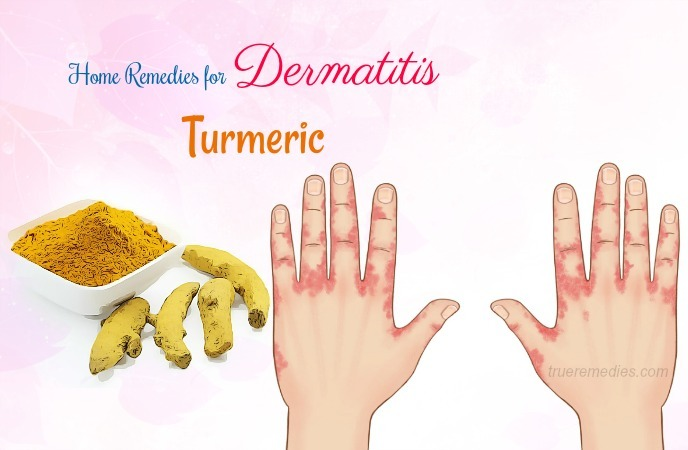 home remedies for dermatitis - turmeric