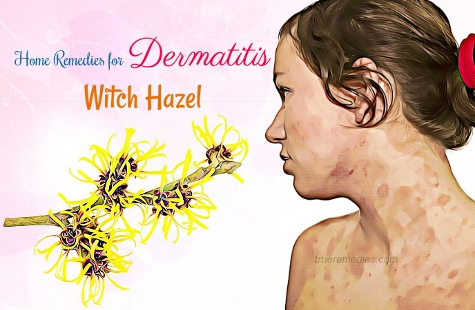 home remedies for dermatitis - witch hazel