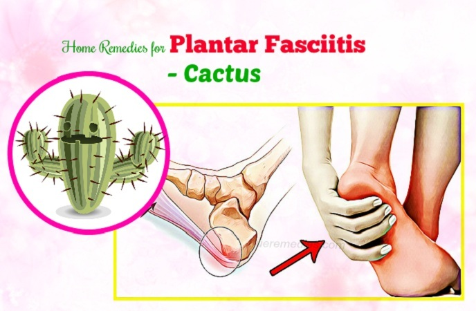 home remedies for plantar fasciitis - cactus