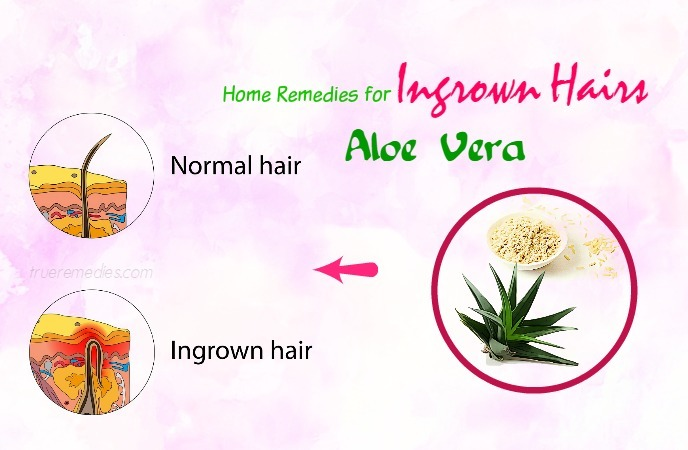 home remedies for ingrown hairs