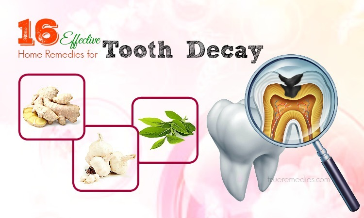 home remedies for tooth decay
