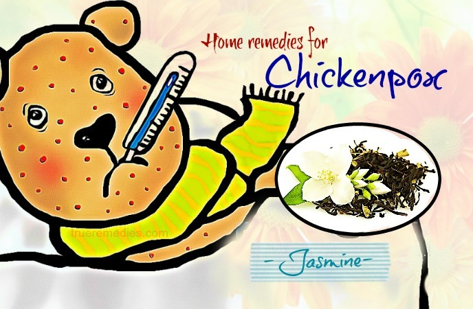 home remedies for chickenpox - jasmine