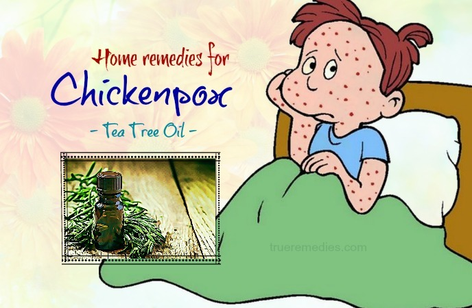 home remedies for chickenpox