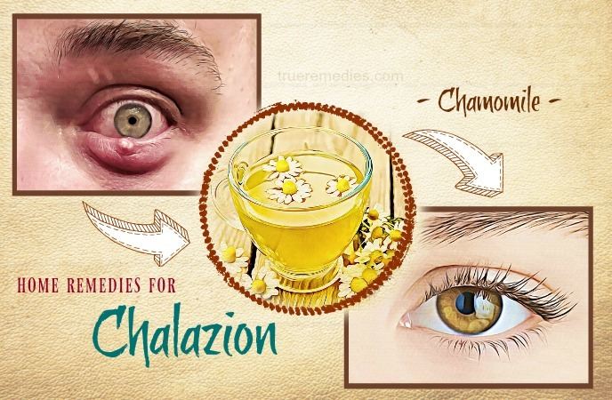 home remedies for chalazion - chamomile