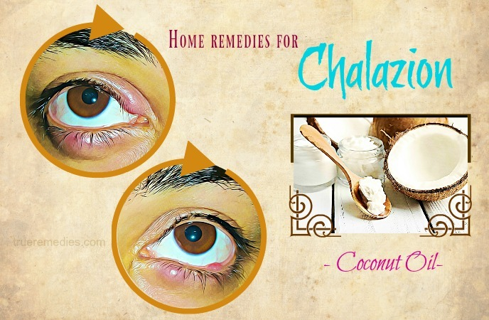 home remedies for chalazion - coconut oil