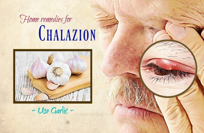 home remedies for chalazion - garlic
