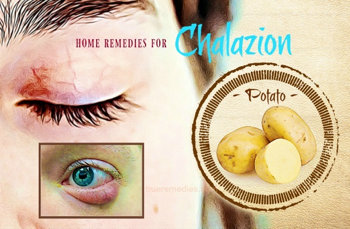 home remedies for chalazion - potato