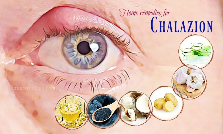 home remedies for chalazion