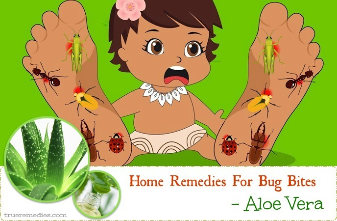 home remedies for bug bites - aloe vera