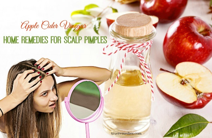 home remedies for scalp pimples - apple cider vinegar