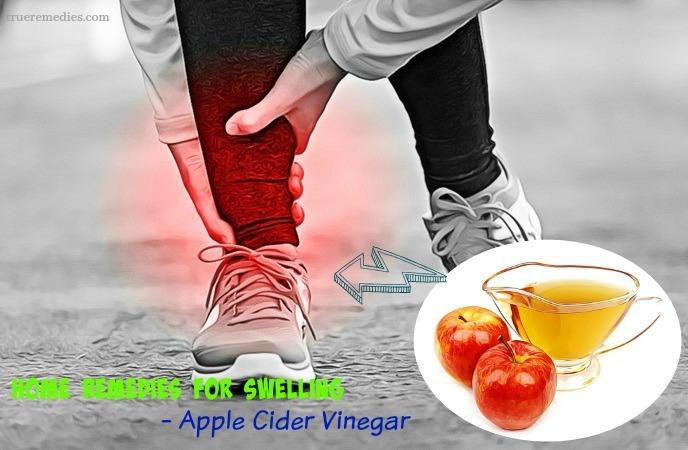 home remedies for swelling - apple cider vinegar