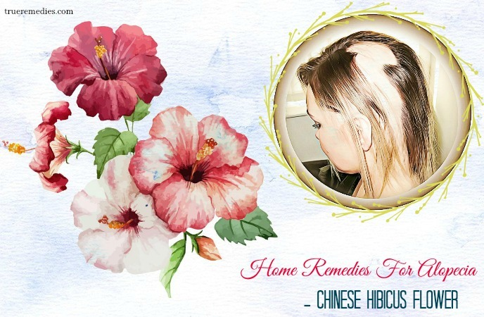 home remedies for alopecia - chinese hibicus flower