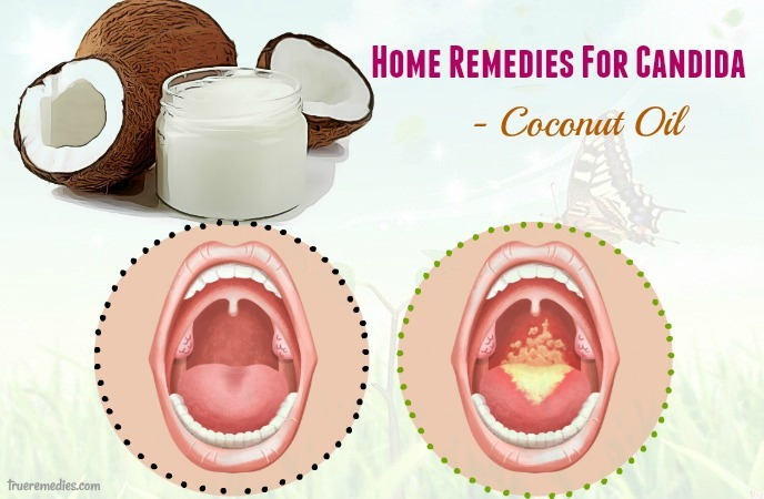 home remedies for candida - coconut oil