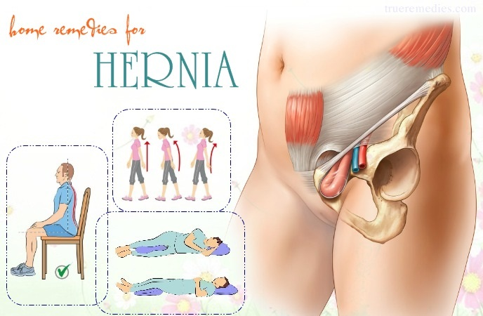 home remedies for hernia - correct wrong postures to reduce pressure on the disc