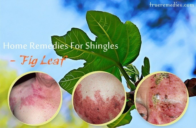 home remedies for shingles - fig leaf