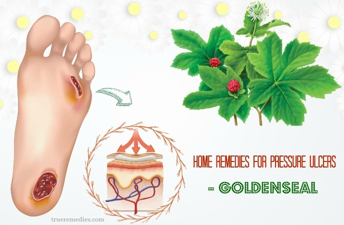 home remedies for pressure ulcers - goldenseal
