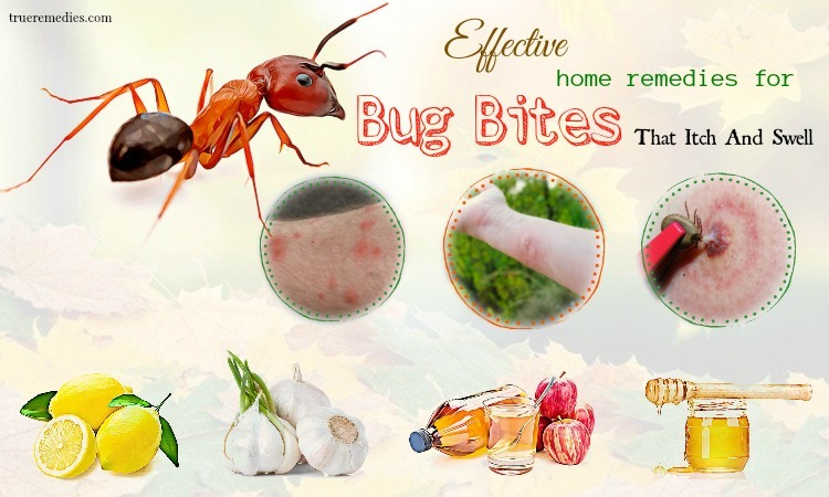home remedies for bug bites that itch