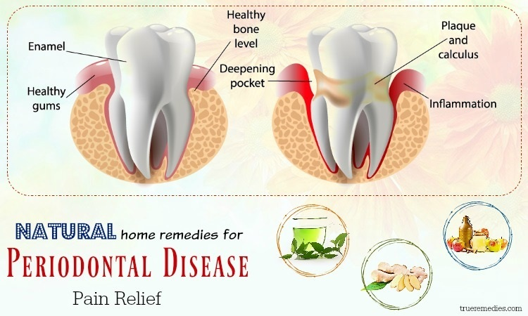natural home remedies for periodontal disease