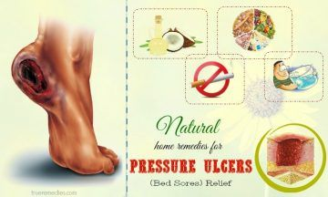 natural home remedies for pressure ulcers