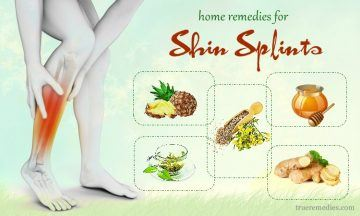 effective home remedies for shin splints