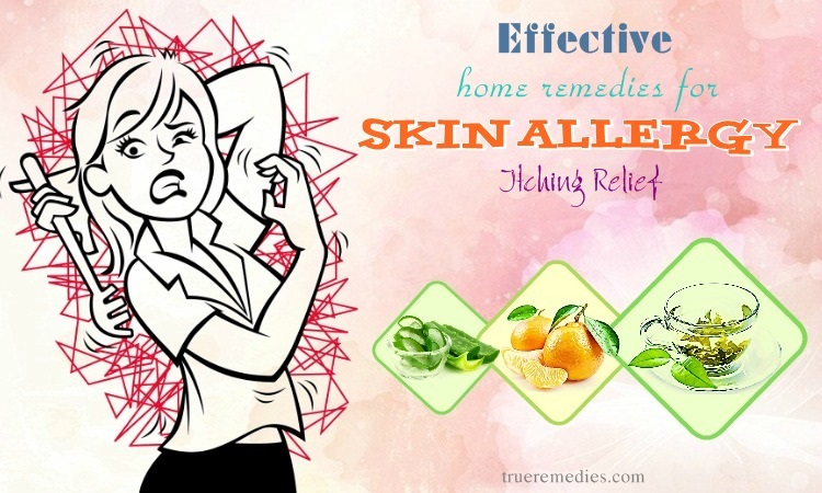 effective home remedies for skin allergy