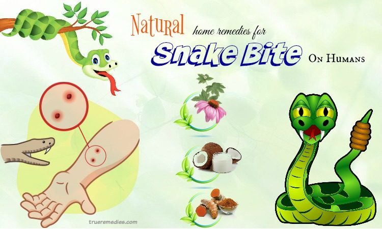 natural home remedies for snake bite
