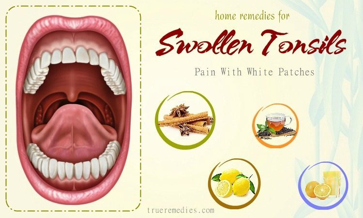 home remedies for swollen tonsils with white p