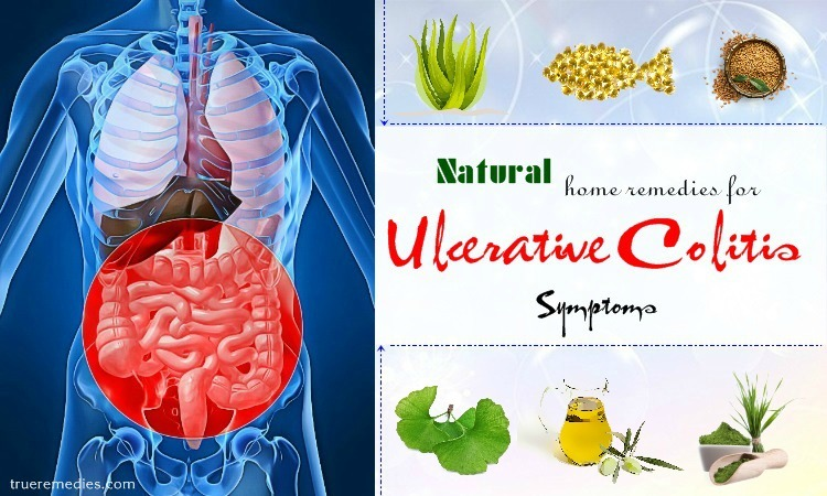 natural home remedies for ulcerative colitis
