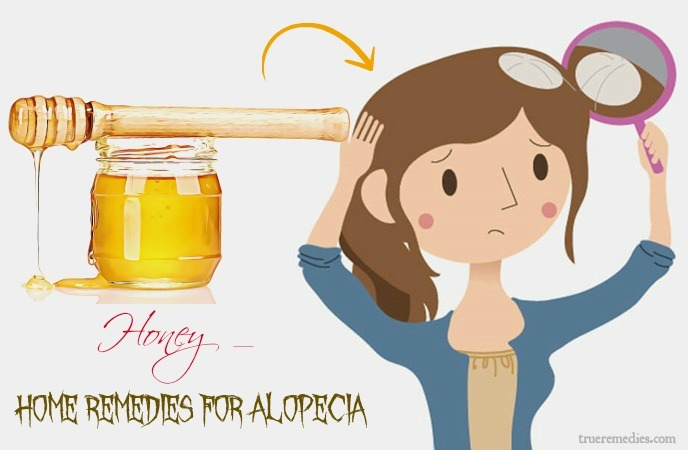 home remedies for alopecia - honey