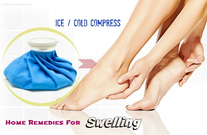 home remedies for swelling - ice cold compress