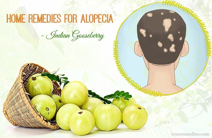 home remedies for alopecia - indian gooseberry