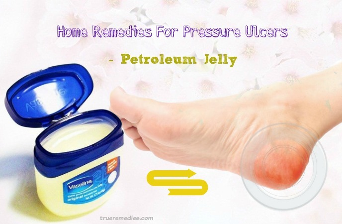 home remedies for pressure ulcers - petroleum jelly